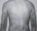 Семейный случай развития врожденной ихтиозиформной эритродермии Брока в нескольких поколениях