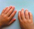 Смешанное заболевание соединительной ткани в практике детского кардиоревматолога