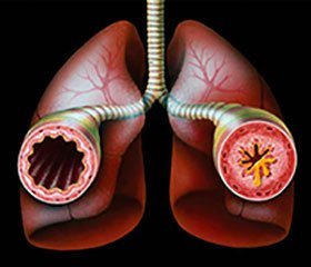 Basic aspects study risk factors for diseases of the respiratory tract at children of early and preschool age.