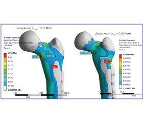 Напружено-деформований стан проксимального відділу стегнової кістки знаявністю порожнистого дефекту (осередок фіброзної дисплазії) в умовах остеосинтезу різними типами фіксаторів