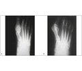 Лечение hallux valgus методом открытой малоинвазивной дистальной остеотомии спараоссальной фиксацией