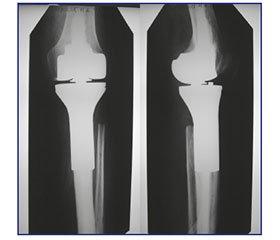 Особливості ендопротезування колінного суглоба при пухлинах кісток, коли спостерігається дефіцит м'яких тканин