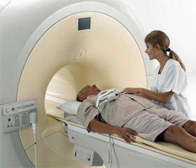 Нейропсихологические расстройства при синдроме начальных проявлений недостаточности кровоснабжения головного мозга, обусловленном атеросклерозом брахиоцефальных артерий