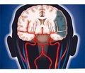 Роль нейропротекции вповышении эффективности терапии ишемического инсульта: фокус наЦеребролизин
