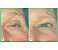 Reconstructive surgery of eyelids: aesthetic or medical aim?