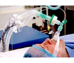 Discussion issues of mechanical ventilation in patients with traumatic brain injury complicated by respiratory distress syndrome