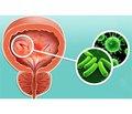 Терапія інфекцій сечовивідних шляхів: ЕСПА-ФОЦИН® знову у фокусі