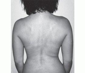 Скелетно-мышечная боль: пути повышения эффективности терапии