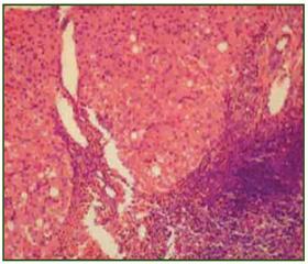 Диета при хроническом гепатите : меню и рецепты