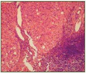 Хронический гепатит С и синдром перегрузки железом