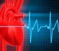 Инфаркт: новый анализ сокращает пребывание в больнице