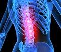 Проблема тромбоэмболии в лечении пациентов с остеопорозом