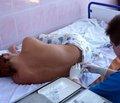 Регіонарний анестезіологічний супровід і спонтанне дихання при лапароскопічних втручаннях