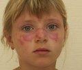 Оцінка стану судинної стінки та функції ендотелію   в дітей, хворих на системний червоний вовчак