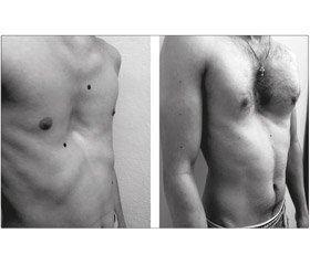 Our experience of using Nuss thoracoplasty as a method of correction of pectus excavatum