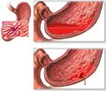 Аргоноплазмова коагуляція при кровоточивих виразках шлунка та дванадцятипалої кишки в дітей