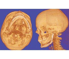 Сучасні можливості та перспективи застосування CAD/CAM технології в лікуванні хворих із дефектами і деформаціями кісток лицевого черепа