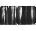 Вибір методики остеосинтезу приметастатичному ураженні кісток кінцівок