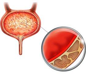 Эспа-фоцин® (фосфомицина трометамол) — рациональный выбор антибиотикотерапии при остром неосложненном цистите