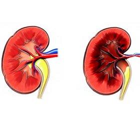 Функціональний стан нирок у хворих на резистентну артеріальну гіпертензію: взаємозв'язок з гуморальними факторами регуляції артеріального тиску