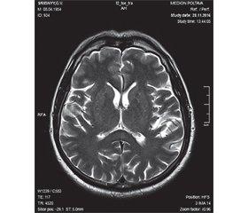 RESLES (Reversible splenial lesion syndrome)