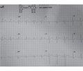 Thyrotoxic Periodic Paralysis: A Rare Case