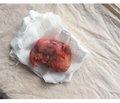 Mucocele/mucinous cystadenocarcinoma of the appendix