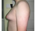 Gynecomastia: modern ideas and approaches to treatment