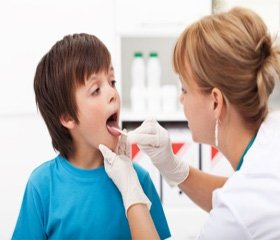 Местная терапия острых фарингитов у детей