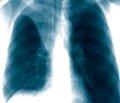 Ателектаз при туберкулезе легких