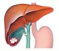 Хірургічна тактика при лікуванні ускладнених форм жовчнокам'яної хвороби у хворих похилого і старечого віку