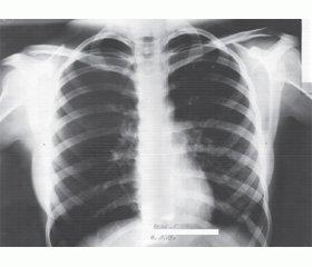 Типичное течение атипичных пневмоний у детей