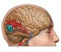 Милдронат® — лечение кардионеврологической патологии в условиях ишемии и гипоксии