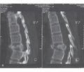 Променева діагностика наслідків травм грудного відділу хребта та спинного мозку впрактиці медико-соціальної експертизи