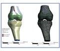 Біомеханічне обґрунтування розвитку та прогресування структурних змін утравмованому хрящі колінного суглоба
