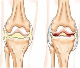 Clinical Manifestation, Course and Results of the Treatment of Patients with Osteoarthritis  and Hypothyroidism: Age and Gender Aspects