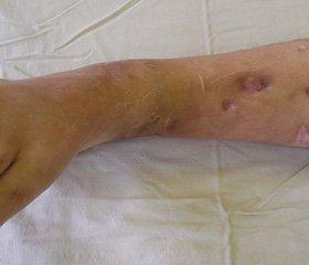 зміни імунного стану постраждалих з посттравматичним остеомієлітом довгих кісток кінцівок в процесі комплексного лікування