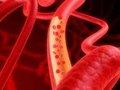 Сеть кровеносных сосудов успешно создана из стволовых клеток