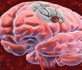 Прогностичне моделювання ішемічного інсульту у хворих   на артеріальну гіпертензію, асоційовану з ІХС при застосуванні антагоністів кальцію