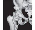 Діагностика гетеротопічної осифікації у хворих із пошкодженням спинного мозку