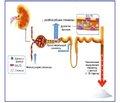 Опыт применения дапаглифлозина у больных сахарным диабетом 2-го типа