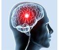 Порівняльна характеристика лікувальних методів усунення гемоконцентрації у хворих із судинними захворюваннями головного мозку