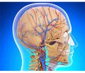 Chronic cerebral venous dysfunction: diagnostic and treatment-and-prophylactic aspects