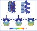 Экспериментальное биомеханическое обоснование транспедикулярного спондилодеза с вертебропластикой наоснове изучения конечно-элементной модели фрагмента позвоночного столба