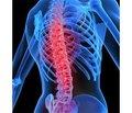 Базовая биорегуляционная терапия дегенеративно-дистрофических заболеваний опорно-двигательного аппарата