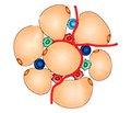 Остеоартрит, індукований ожирінням: мультифакторіальні асоціації та провідна роль адипокінів, дисліпідемії й механічного навантаження