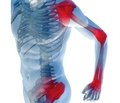 Діагностика та лікування артралгії