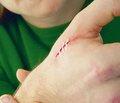 Пато- и саногенетические аспекты раневого процесса (обзор литературы)