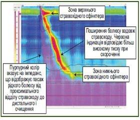 Еволюція зондових методів досліджень в гастроентерології: огляд і власні дослідження