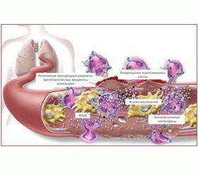 Анти-В-клеточная терапия — новое направление в лечении АНЦА-ассоциированных системных васкулитов